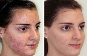 Ossigenoterapia Viso Prima e Dopo per acne