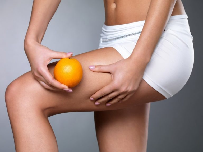Come capire cellulite